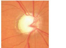 Optic disc in a patient with glaucoma.jpg