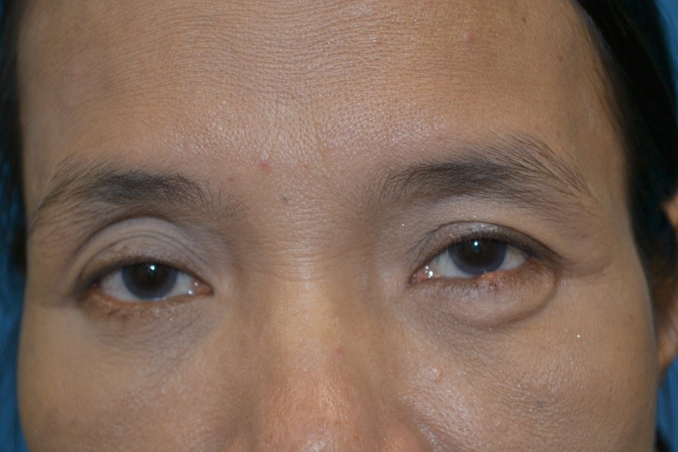 Oculoplastic and Facial Aesthetic